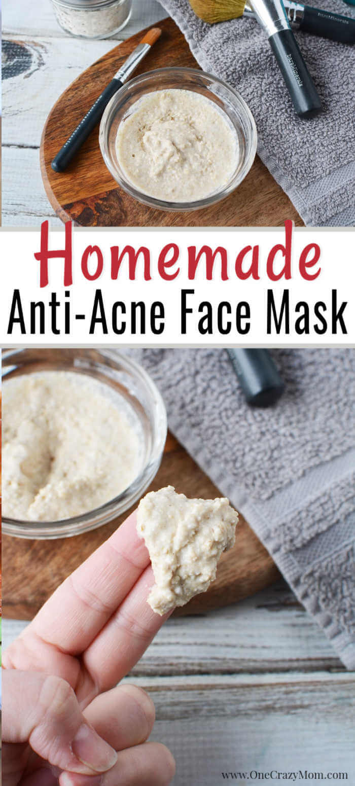 Do you struggle with acne but want an all natural product to use? We have an easy DIY Face Mask for Acne that will improve the appearance of your skin.